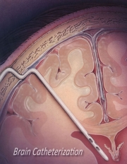 Brain Catheterization