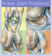 Knee Joint Problems