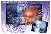 Splenic Artery Aneurysm